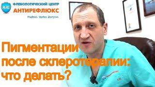 Склеротерапия вен, появление пигментных пятен на ногах, что делать?