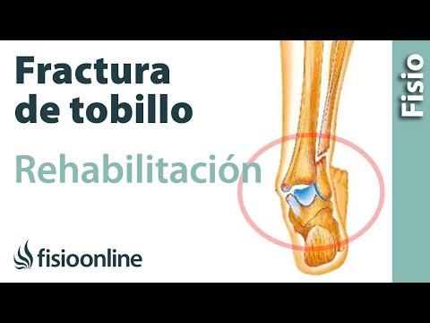 Rehabilitación de la rodilla después de la prótesis