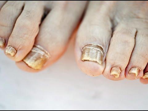 El hongo de las uñas de los pies que curar la foto