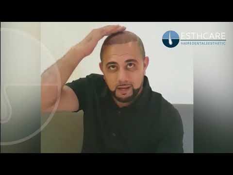 زراعة الشعر l تقنية أقلام تشوي 4500 بصيلة | مشفى إست كير