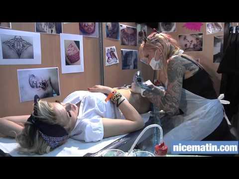 3 stade du cancer de la poitrine après lopération