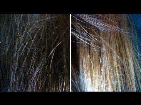 Telogennoje der Haarausfall die Rezensionen