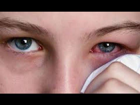 Video Jenis Penyakit Yang Bisa Terdeteksi Dari Mata