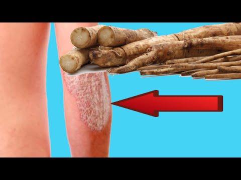 Quello che è un eczema di fotografia di malattia