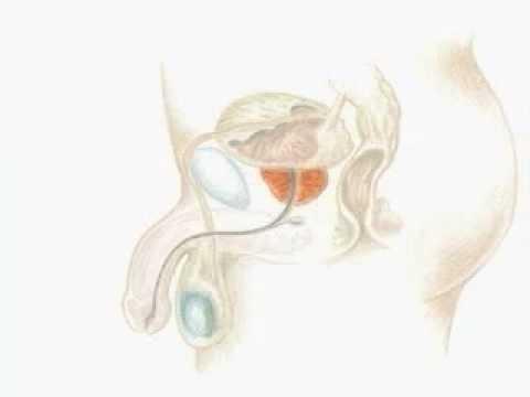 Chirurgie Prostata Rekonstitution zu entfernen
