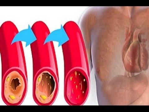 Ob Eier bei Diabetes mellitus Typ 2