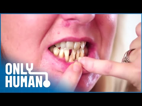 Dentist Fear Made Her Teeth Rot | Extreme Smile Makeover | Only Human