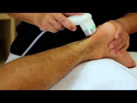 Osteochondrose mit Radikulärsyndrom und der Armee