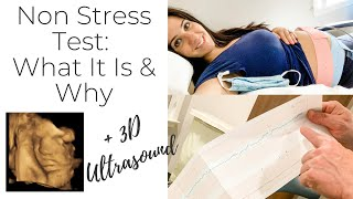 Non Stress Test During Pregnancy, What To Expect, 33WK Update, NST