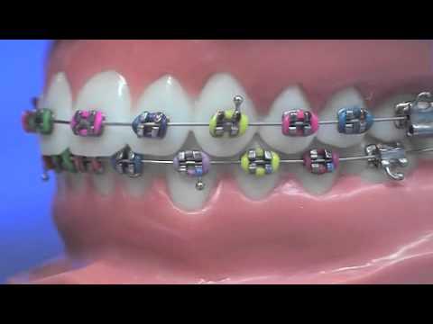 Easy and effective way to put wax on braces - Your sleep