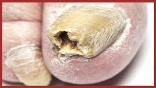 Nagelpilz Behandeln ✔ Wie Man Nagelpilz SCHNELL Behandelt Mit Hausmittel
