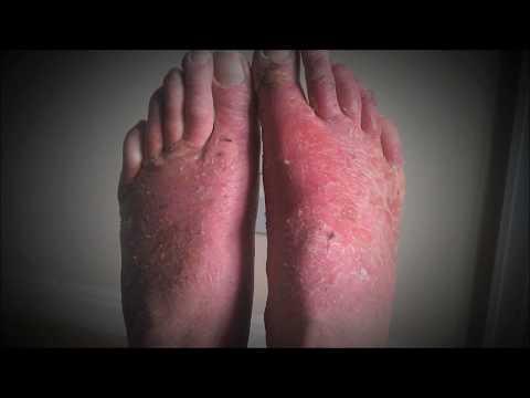 In totale su dermatite atopic al bimbo