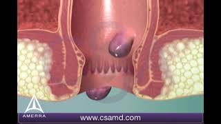 Hemorrhoids - 3D Medical Animation