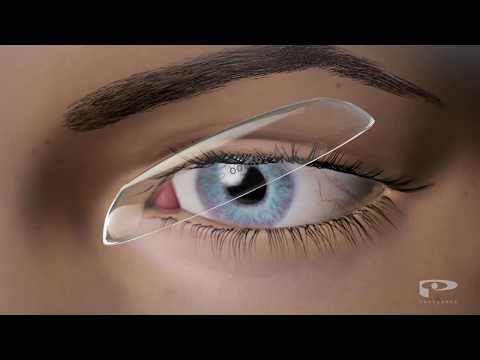 Wie die blauen Flecke unter den Augen in kosmetologii Video entfernen