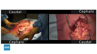 For Surgical First Assist: Posterior Lumbar Laminectomy and Fusion (Cadaveric)