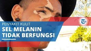 Vitiligo, Penyakit Kulit karena Tidak Berfungsinya Sel Melanin