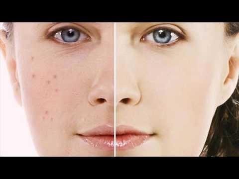 Отбеливание кожи рисовой мукой
