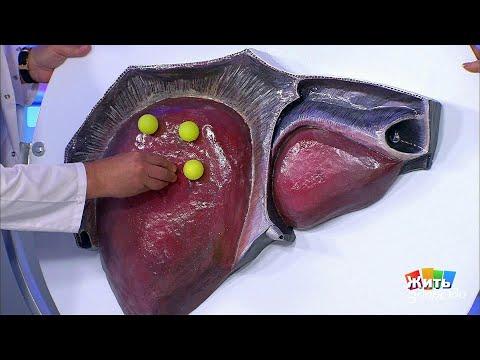 Рибавирин лечение гепатита с цена