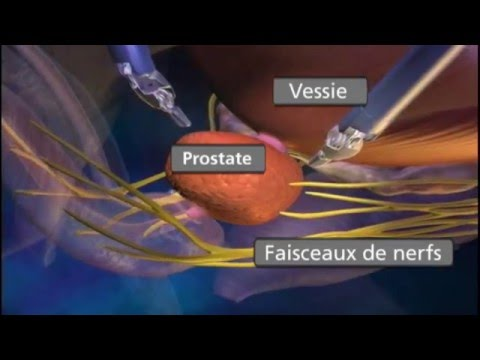 Le traitement du cancer de la prostate à Saint-Pétersbourg