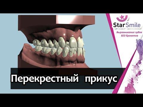 Перекрестный прикус зубов. Лечение каппами Star Smile