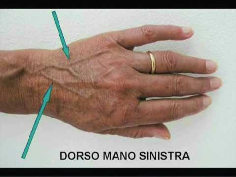 Dolori dopo scleroterapia di vene delle estremità più basse