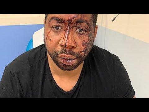 Γαλλία: Υπό κράτηση τέσσερις αστυνομικοί για χρήση υπέρμετρης βίας …