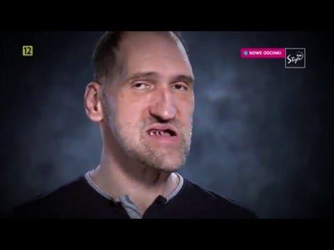Technika chirurgicznego powiększania piersi