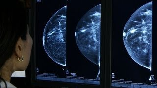 3D mammograms enhance cancer screening, study says