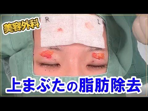 【閲覧注意】【手術】【美容外科】上まぶたの脂肪除去(上眼瞼脂肪除去法)
