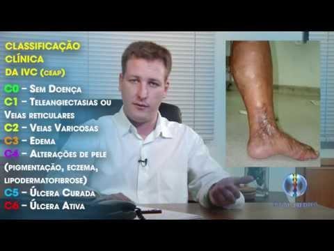 Acidose em pacientes com hipertensão arterial