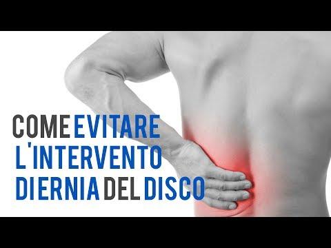 Lombare ernia intervertebrale trattamento nazionale