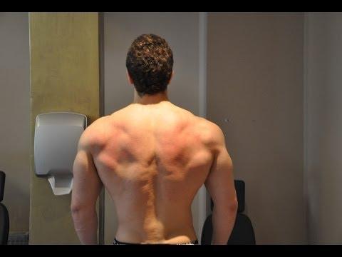 Leczenie ostrego bólu z powrotem