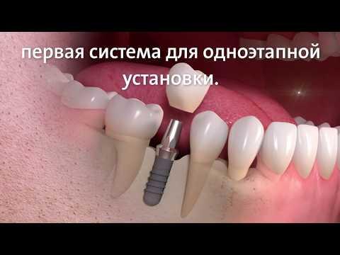 Импланты Straumann. Швейцарская система для имплантации. Зубные импланты штрауман