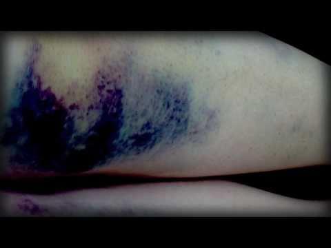 Die gute Creme für die Beine von warikosa die Rezensionen