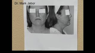 Dr. Jabor - Anterior Neck Lift