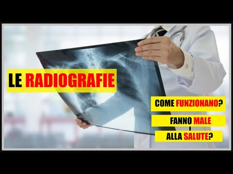Massaggio video alla osteocondrosi diffusa