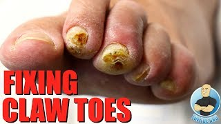 CUTTING TOE TENDON TO FIX A CLAWED TOE (HAMMER TOE)