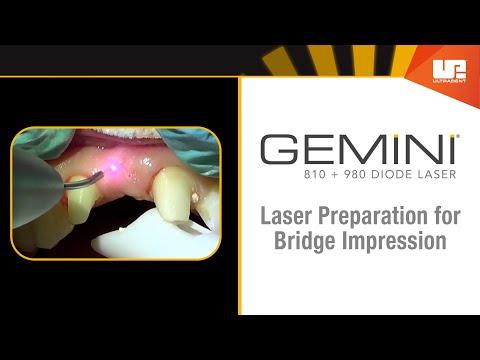 Gemini Diode Laser Step-by-Step: Dental Bridge Impression Preparation