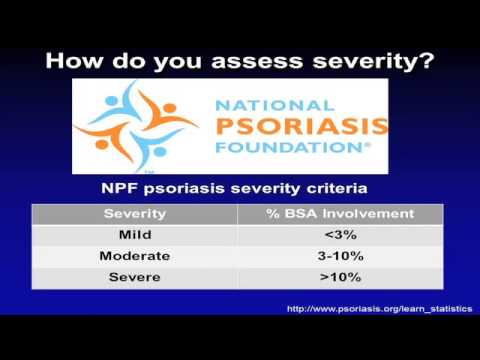 Biologics in Psoriaris