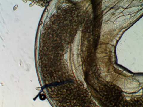 Parasites aquatic invertebrate