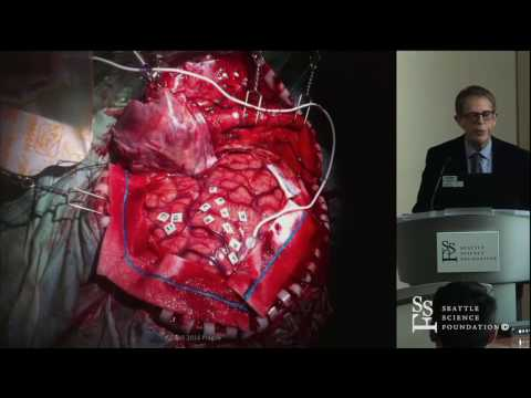 Personalized Brain Surgery and Preservation of Function