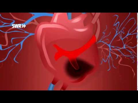 Differentialdiagnose der arteriellen Hypertonie