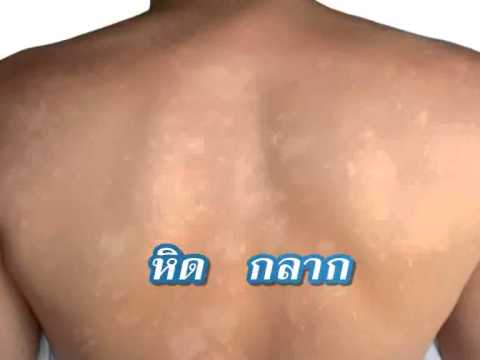 Neurodermatitis ครีม Bepanten