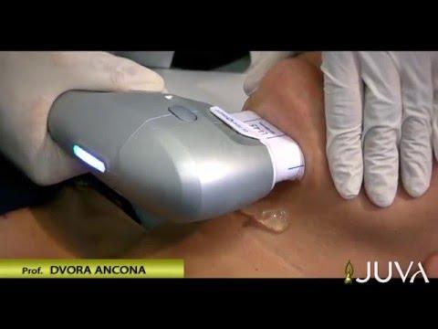 Dolore nel trattamento articolazioni delle dita