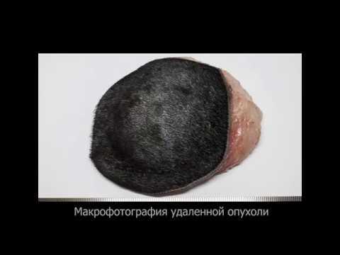 Мастоцитома области бедра у мопса |  Mastocytoma (MCT) surgical resection in a dog