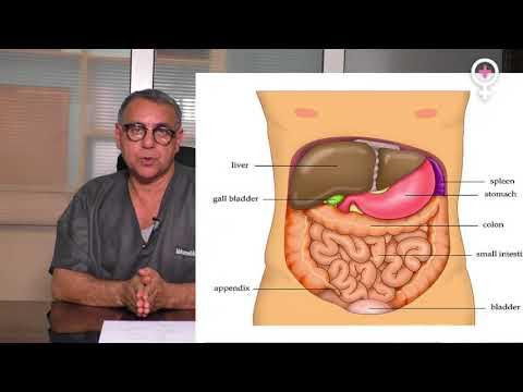 Grade 3 cancer de la prostate vidéo