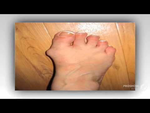 Шишки на пальцах ног сверху фото