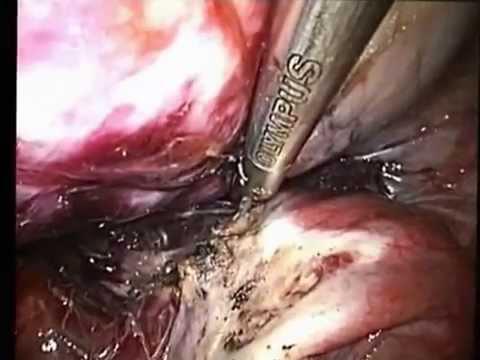 Damo parasite 5 mga titik