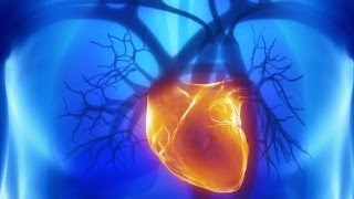 Detroit Medical Center: Cryo Ablation Treatment for Atrial Fibrillation
