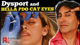 BRI GETS DYSPORT Before Her CAT EYE LIFT // Cat Eye Lift Without Surgery